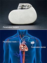 Permanent Pacemaker